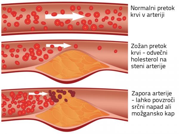 sladkor povzroča holesterol maščoba